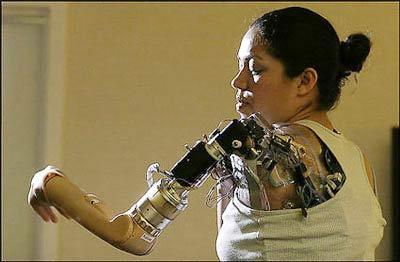 Người phụ nữ đầu tiên có cánh tay sinh học
