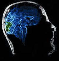 """Chip sinh học giúp """"thông"""" lại các đường liên lạc trong não"""