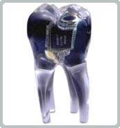 Răng giả có thể gây u bướu