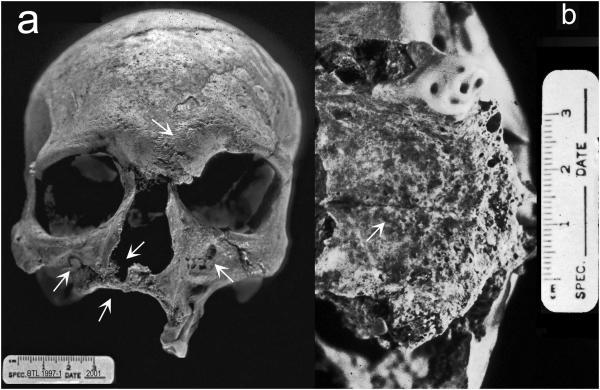 Bằng chứng cổ nhất về bệnh phong ở Ấn Độ