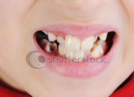 Những thực phẩm làm hỏng răng