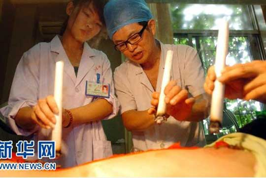 Những thủ pháp châm cứu đặc biệt của người Trung Quốc