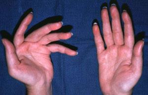 Hồi phục tổn thương do chứng bệnh đa xơ cứng
