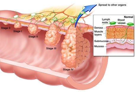Phát hiện gen đột biến có thể ngăn di căn ung thư