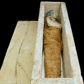Chẩn bệnh xác ướp 4.000 năm tuổi