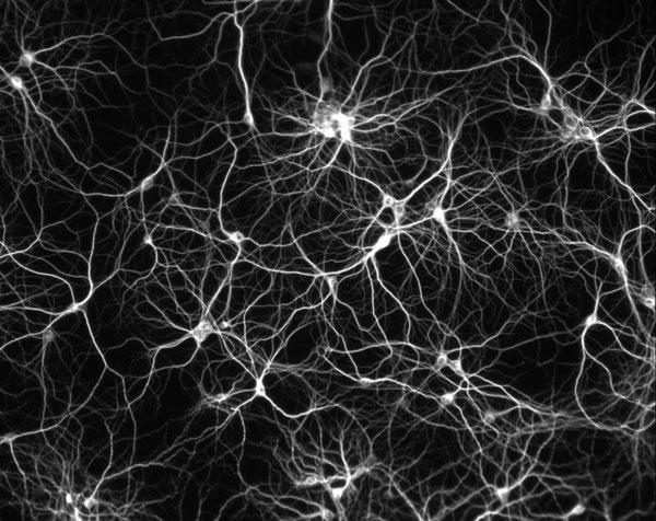 Não người đã bị đi giảm tới 14 tỷ tế bào thần kinh