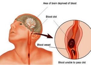 Thay đổi mạch thần kinh não dẫn đến đau ma chi