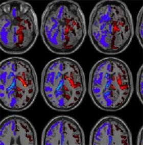 Phát hiện gây shock về người não trái và người não phải
