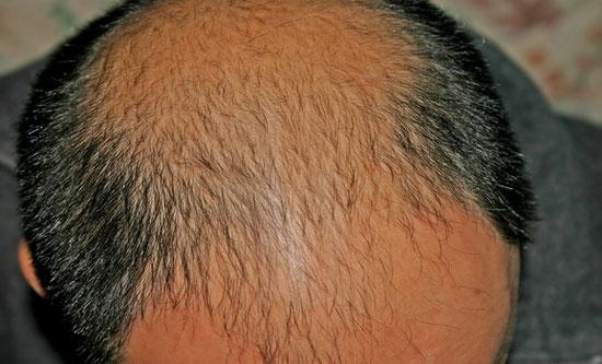 Phương pháp mới điều trị hói đầu