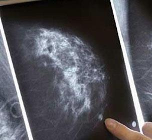 Điểm tương đồng giữa ung thư vú và buồng trứng