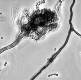 Bệnh viêm màng não do nấm tiếp tục lan rộng ở Mỹ