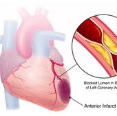 Thiết bị Kardiosens cảnh báo sớm nhồi máu cơ tim