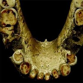 """Bằng chứng cho thấy người cổ đại đã biết dùng tăm để """"xỉa răng"""""""