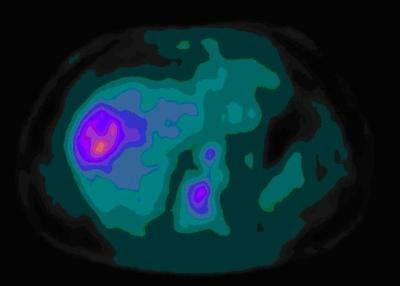 Ung thư gan: có thể chữa được nếu phát hiện sớm