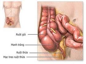 Có thể bạn chưa biết: Viêm ruột thừa là do virus