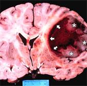 Phát hiện ra hai loại protein gây căn bệnh ung thư não