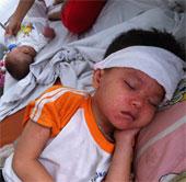 Triệu chứng và cách chăm sóc trẻ mắc bệnh sởi