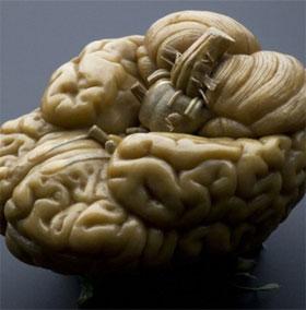 """Điều gì sẽ xảy ra nếu """"kích điện"""" vào bộ não chết?"""