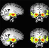 Hé lộ bí mật của bộ não thanh thiếu niên hư