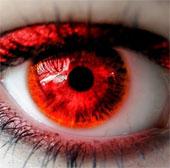 """Những nguyên nhân """"không thể ngờ"""" gây bệnh đau mắt đỏ"""