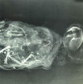 Khảo cổ hài cốt bào thai phát hiện ra cách phá thai thời Trung Cổ