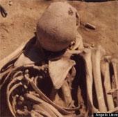 Phát hiện hài cốt bệnh nhân ung thư cách đây 4.500 năm