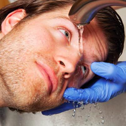 Cách sơ cứu khẩn cấp cho người bị bỏng axit
