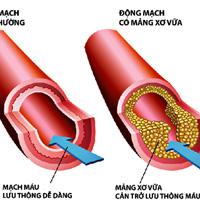Rối loạn mỡ máu và cách điều trị không dùng thuốc