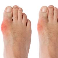 Bệnh gout đến từ đâu?