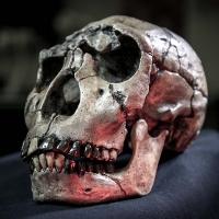 Sự tiến hóa của loài người sẽ làm răng khôn biến mất