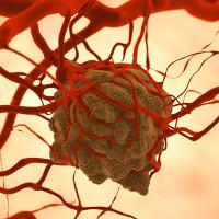 Tế bào ung thư di căn trong cơ thể theo cách đáng sợ hơn bạn nghĩ
