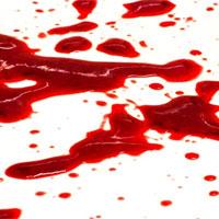 Bất ngờ về lý do khiến nhiều người nhìn thấy máu là ngất xỉu
