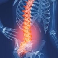 Gai xương cột sống thắt lưng, một biểu hiện của thoái hóa cột sống