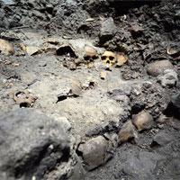 Phát hiện chưa từng có: Con người biết chữa tủy răng từ thế kỷ 8