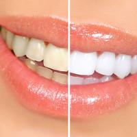 16 cách làm răng trắng hơn