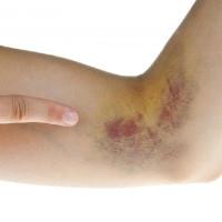 Những cách xóa tan vết bầm tím trên cơ thể