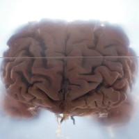 Phát hiện lý giải vì sao con người dễ mắc bệnh thần kinh hơn so với các loài khác