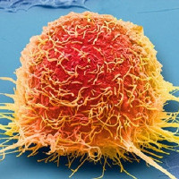 Chế độ ăn uống kì diệu: Bỏ đói khối u ung thư như binh pháp