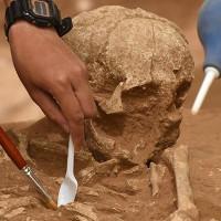 Ca phẫu thuật khoan xuyên hộp sọ cách đây 3.000 năm