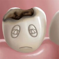 Tại sao hàn răng sâu không hề đau và đáng sợ như bạn nghĩ?