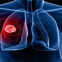 Bệnh ung thư phổi nghệ sĩ Hán Văn Tình mắc phải nguy hiểm thế nào?