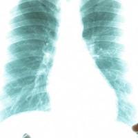 Bệnh nhân ung thư phổi di căn khắp cơ thể vẫn chữa khỏi
