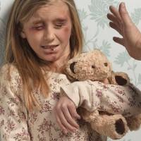 Trẻ em bị cha mẹ ngược đãi dễ bị teo não