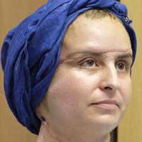 Người phụ nữ mang gương mặt quỷ trở nên xinh đẹp đến bất ngờ sau 3 năm