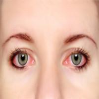 """Những điều """"không thể không biết"""" về bệnh đau mắt đỏ"""