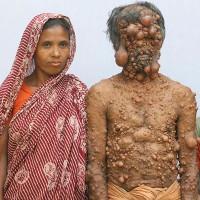 """Người đàn ông """"trăm u"""" bị xa lánh ở Bangladesh"""