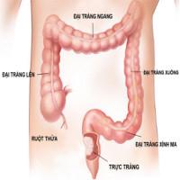 Ung thư đại trực tràng: Triệu chứng, nguyên nhân và cách phòng tránh