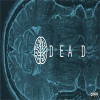 Chết não và cái chết của con người