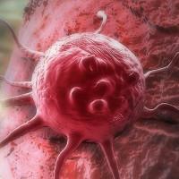 Bắt tế bào ung thư tự hủy - đột phá trong điều trị vấn nạn của thế kỷ