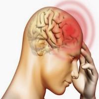 Ung thư não, triệu chứng và dấu hiệu nhận biết